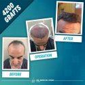 Transplant de par sau barba